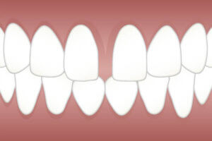 Fixing Gaps in Teeth