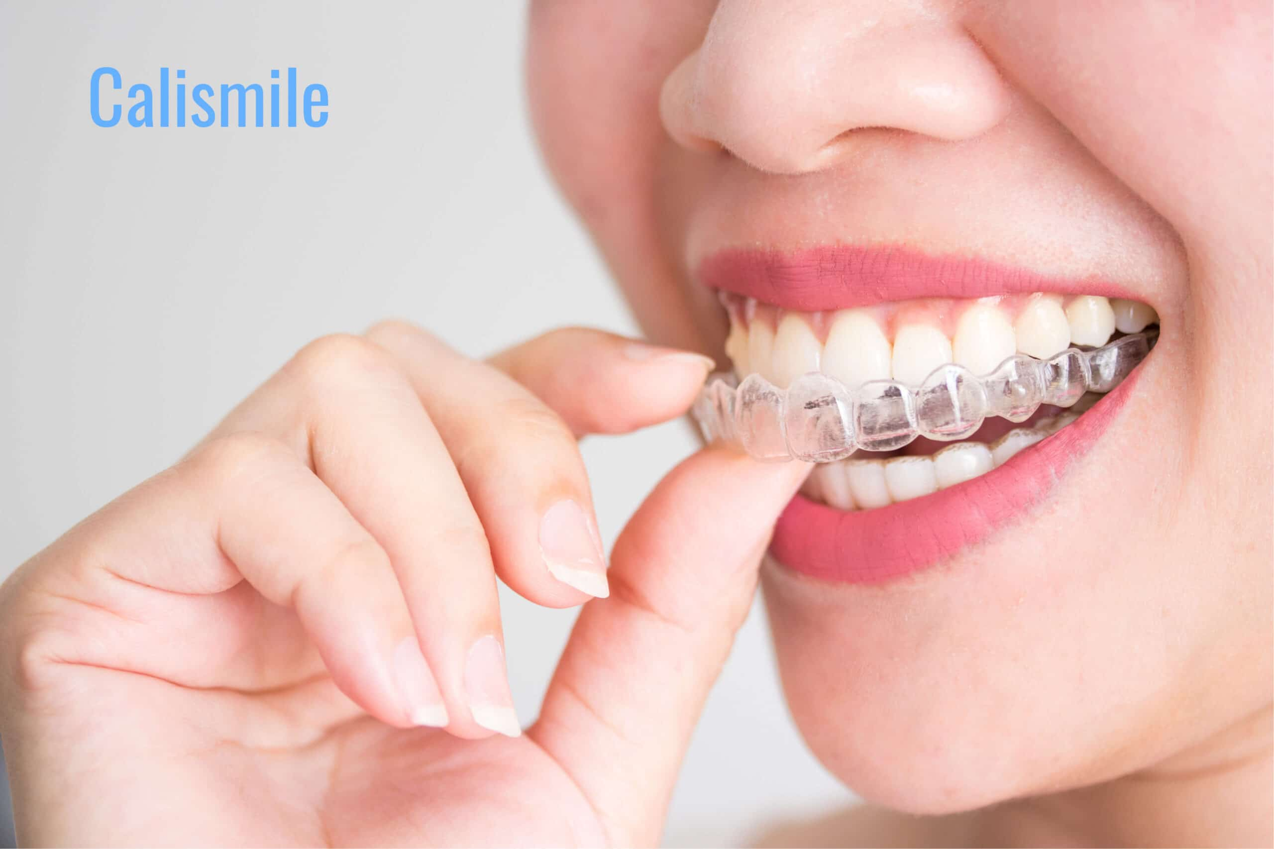 How Invisalign Improves Your Jawline