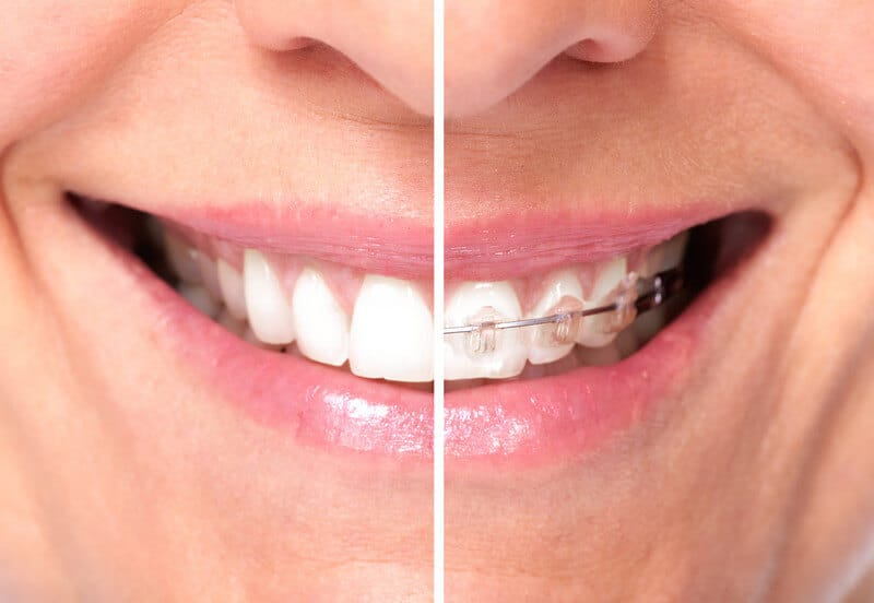 How Long Do You Have to Wear Braces? - CaliSmile Orthodontics