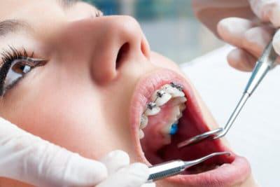 Can Braces Make My Teeth Loose?