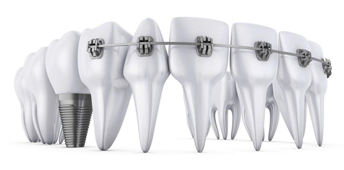 Dental implants with braces