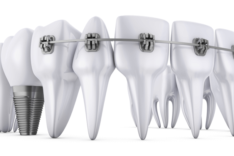 Dental implants with braces