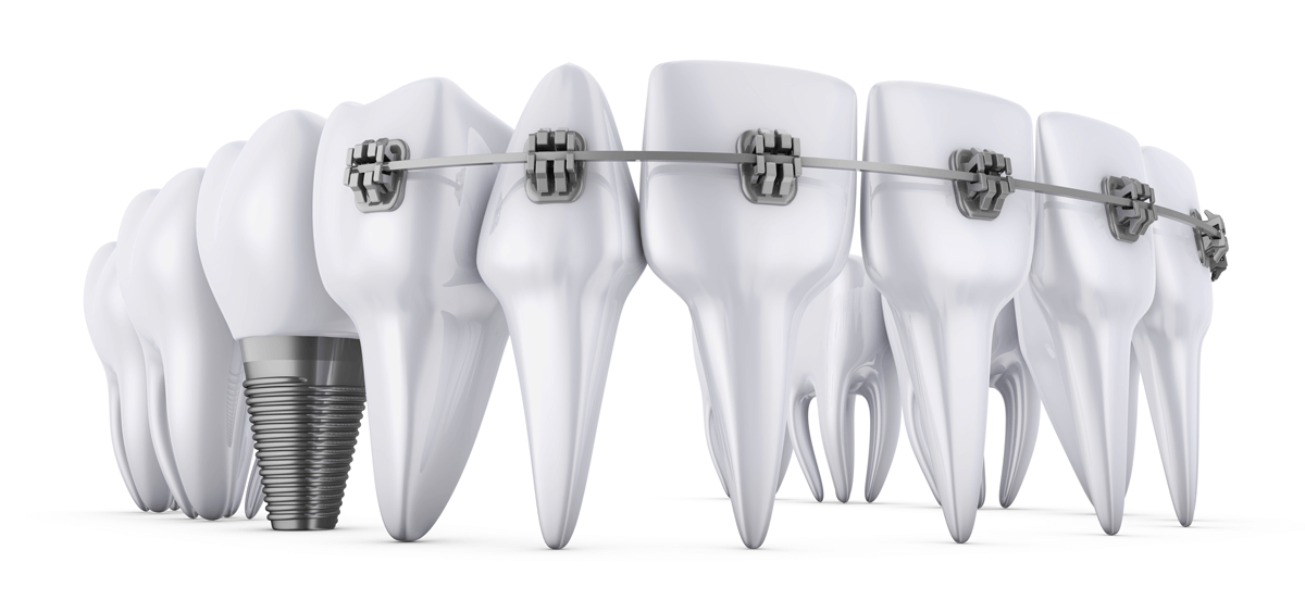 Can I get braces with an implant?